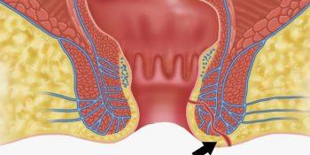 Fístula perianal