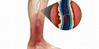 Tromboflebite superficial | flebite